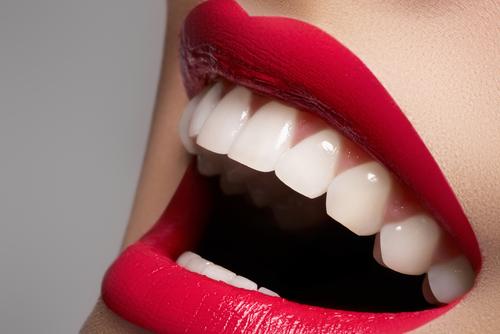 white-smile-plano-2