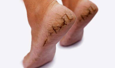 Home Remedies for CrackedHeels