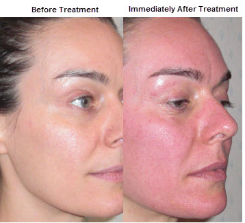 Micro-Needling-before-after-Face