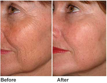 skin-resurfacing-pic