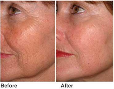 skin-resurfacing-pic