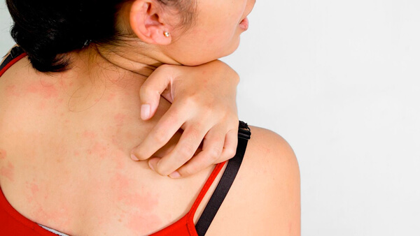 Home Remedies to Cure Prickly Heat Rashes