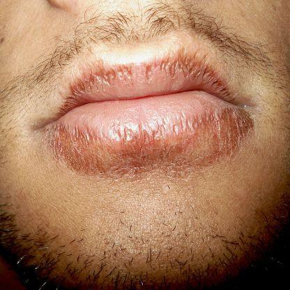 Chapped-lips-5