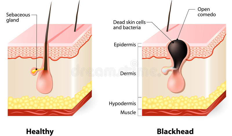 healthy-skin-blackheads-types-acne-pimples-69992664.jpg
