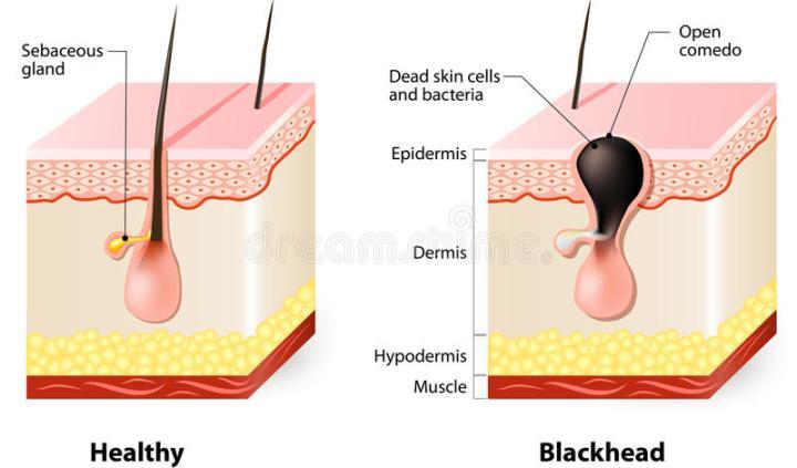 healthy-skin-blackheads-types-acne-pimples-69992664.jpg