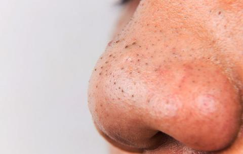 let-someone-squeeze-blackheads-1-1504014481_large